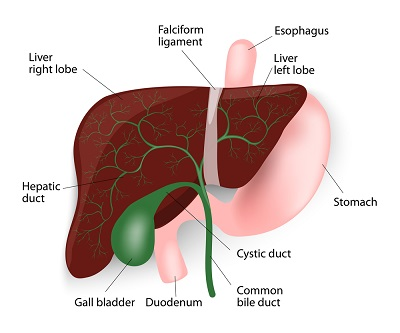 Chronic Constipation Causes due to bile stone build-up and becoming larger in size