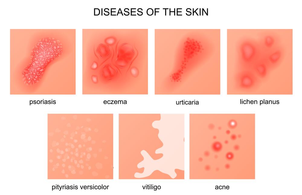 Skin diseases - Is eczema a gut problem?